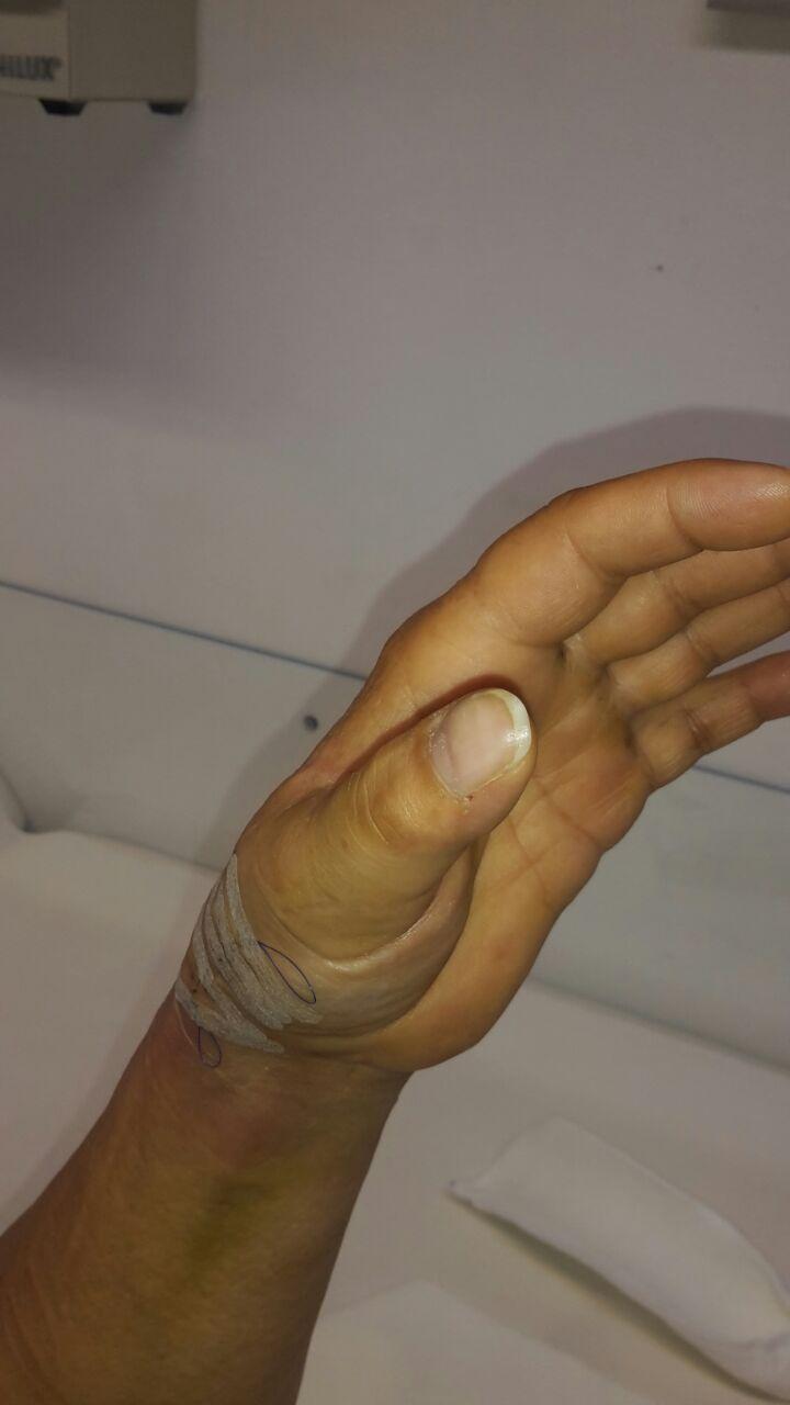 Zustand nach Operation der Rhizarthrose